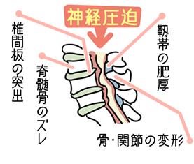 脊柱管狭窄症イラスト